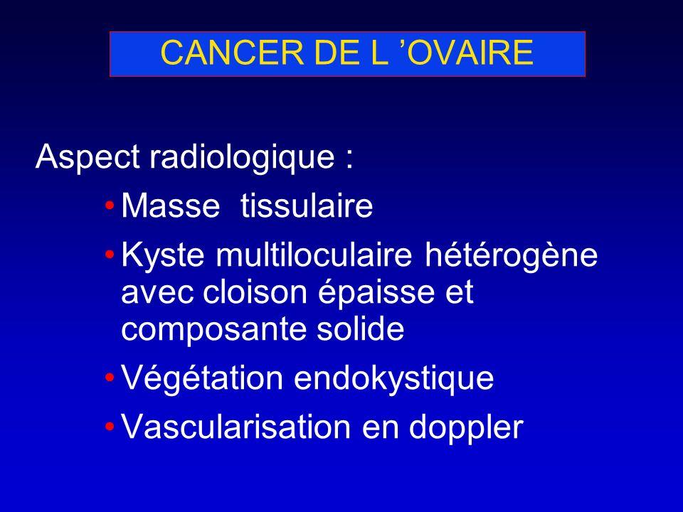 CANCER DE L OVAIRE Aspect radiologique : Masse tissulaire Kyste multiloculaire hétérogène avec cloison épaisse et composante solide Végétation endokys