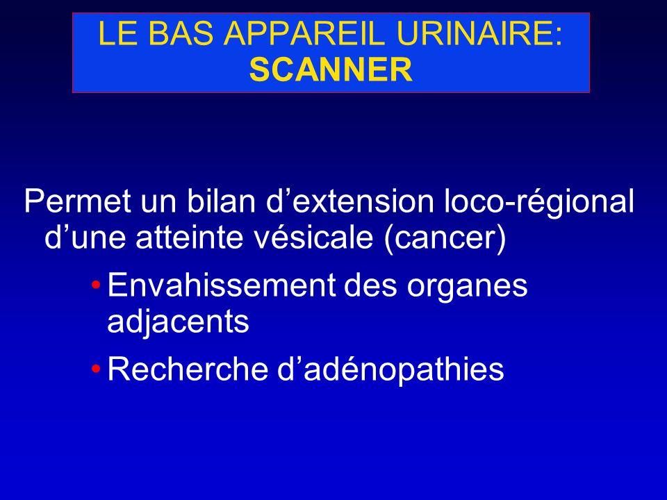 LE BAS APPAREIL URINAIRE: SCANNER Permet un bilan dextension loco-régional dune atteinte vésicale (cancer) Envahissement des organes adjacents Recherc