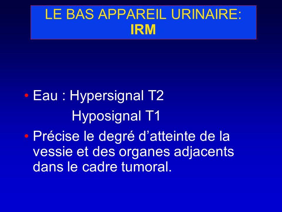LE BAS APPAREIL URINAIRE: IRM Eau : Hypersignal T2 Hyposignal T1 Précise le degré datteinte de la vessie et des organes adjacents dans le cadre tumora
