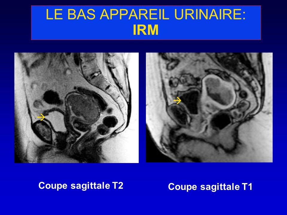 LE BAS APPAREIL URINAIRE: IRM Coupe sagittale T2 Coupe sagittale T1