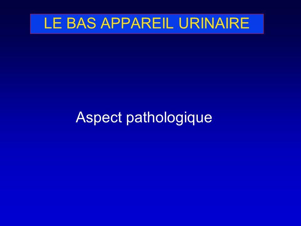 LE BAS APPAREIL URINAIRE Aspect pathologique