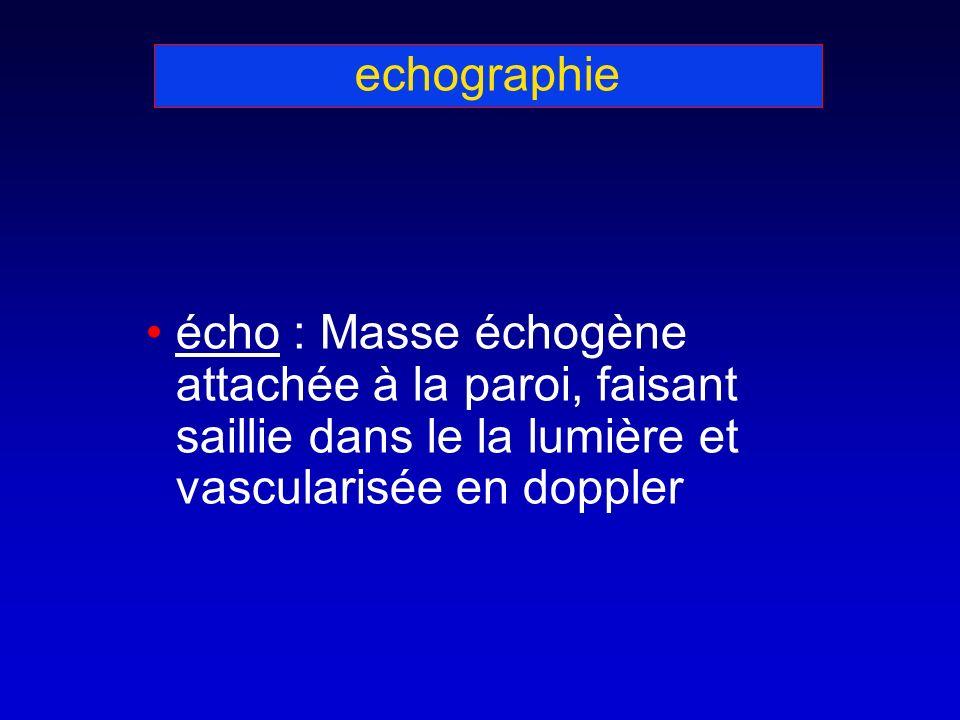 echographie écho : Masse échogène attachée à la paroi, faisant saillie dans le la lumière et vascularisée en doppler