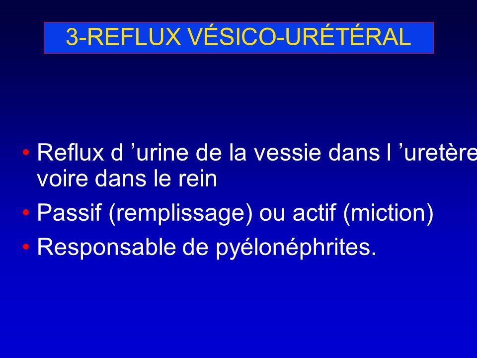 3-REFLUX VÉSICO-URÉTÉRAL Reflux d urine de la vessie dans l uretère voire dans le rein Passif (remplissage) ou actif (miction) Responsable de pyélonép