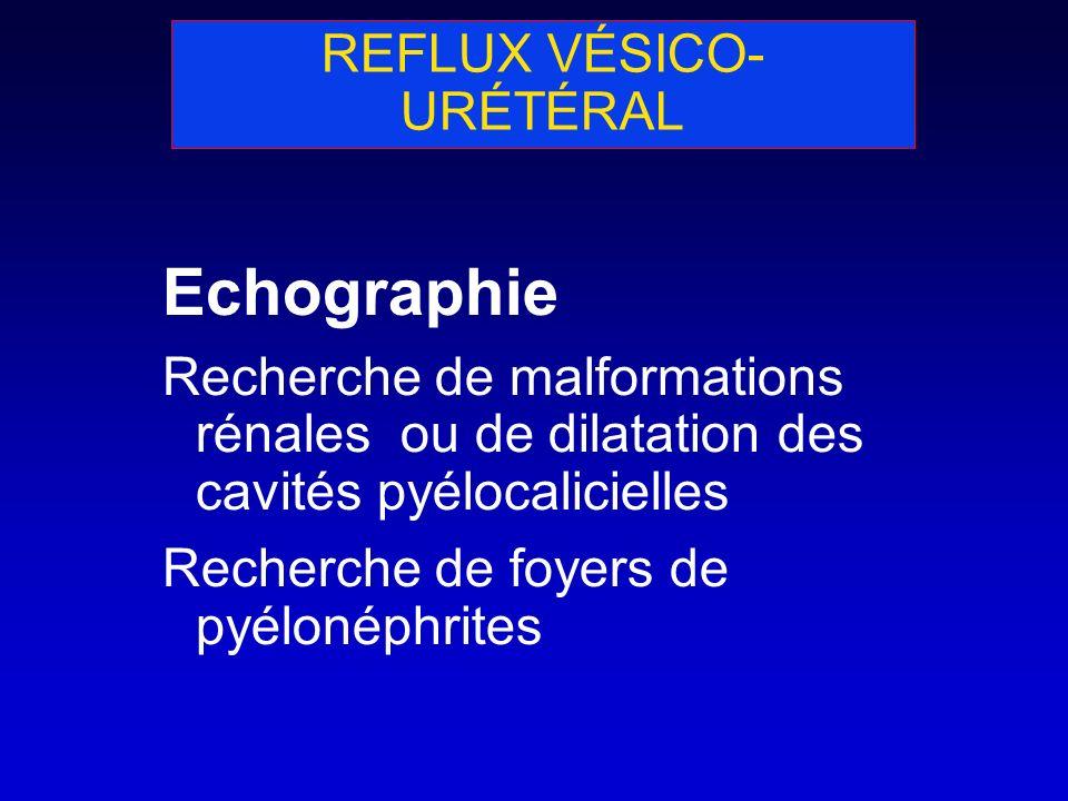 REFLUX VÉSICO- URÉTÉRAL Echographie Recherche de malformations rénales ou de dilatation des cavités pyélocalicielles Recherche de foyers de pyélonéphr
