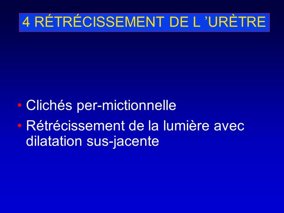 4 RÉTRÉCISSEMENT DE L URÈTRE Clichés per-mictionnelle Rétrécissement de la lumière avec dilatation sus-jacente