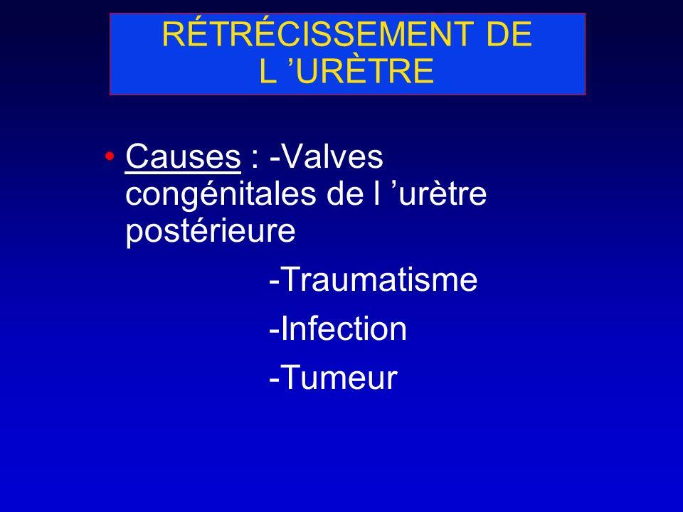 RÉTRÉCISSEMENT DE L URÈTRE Causes : -Valves congénitales de l urètre postérieure -Traumatisme -Infection -Tumeur