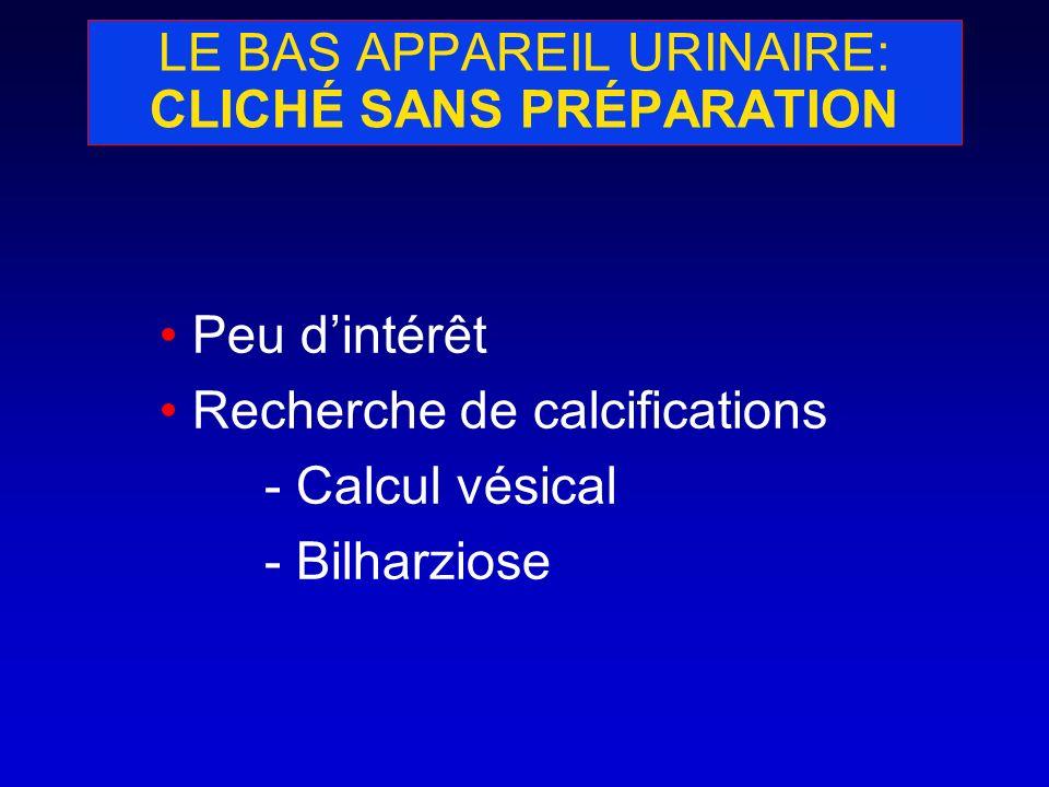 LE BAS APPAREIL URINAIRE: SCANNER Permet un bilan dextension loco-régional dune atteinte vésicale (cancer) Envahissement des organes adjacents Recherche dadénopathies