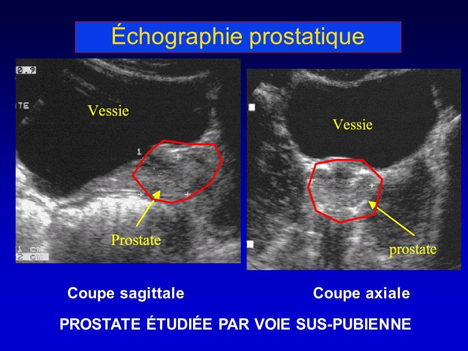 Échographie prostatique Coupe sagittaleCoupe axiale PROSTATE ÉTUDIÉE PAR VOIE SUS-PUBIENNE