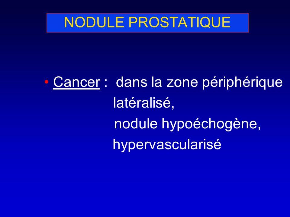 NODULE PROSTATIQUE Cancer : dans la zone périphérique latéralisé, nodule hypoéchogène, hypervascularisé