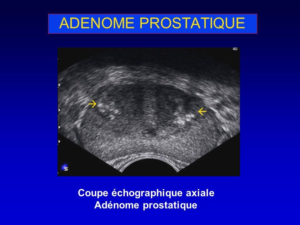 ADENOME PROSTATIQUE Coupe échographique axiale Adénome prostatique