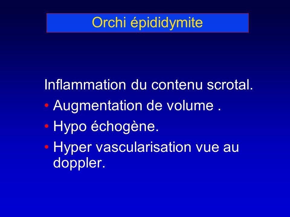 Orchi épididymite Inflammation du contenu scrotal. Augmentation de volume. Hypo échogène. Hyper vascularisation vue au doppler.