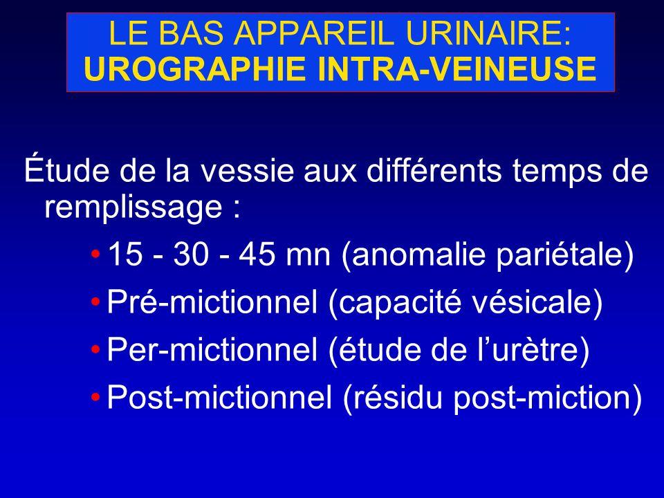LE BAS APPAREIL URINAIRE: UROGRAPHIE INTRA-VEINEUSE Étude de la vessie aux différents temps de remplissage : 15 - 30 - 45 mn (anomalie pariétale) Pré-