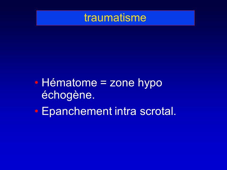 traumatisme Hématome = zone hypo échogène. Epanchement intra scrotal.