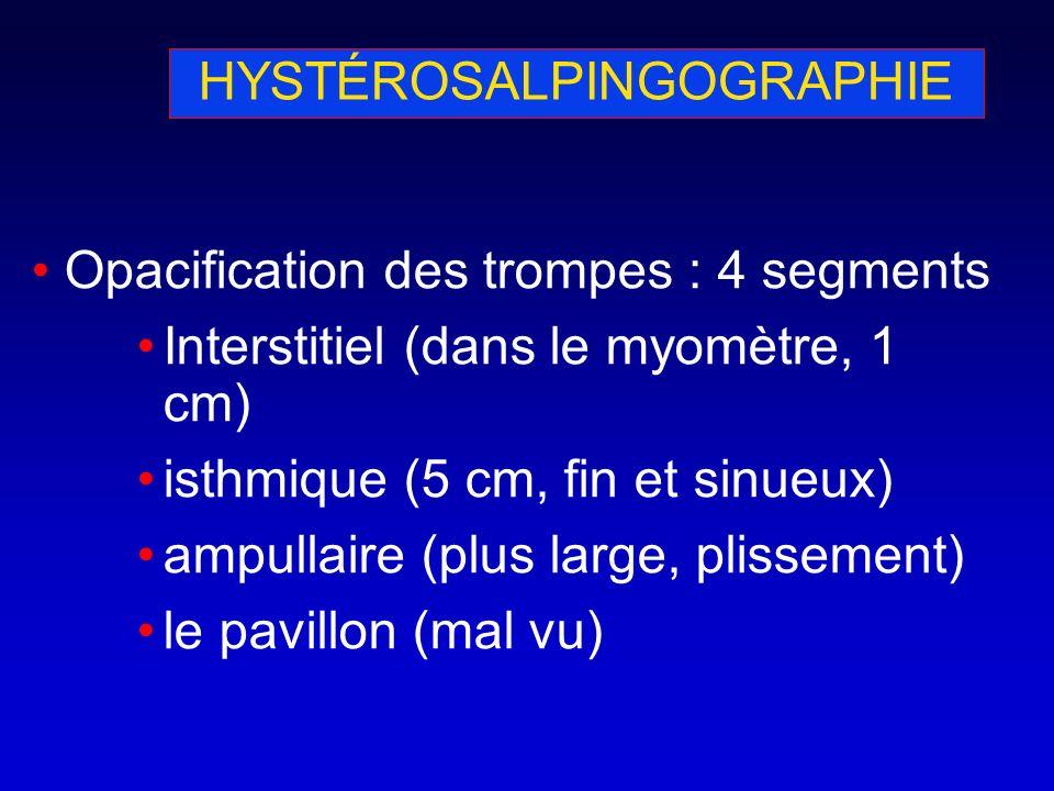 HYSTÉROSALPINGOGRAPHIE Opacification des trompes : 4 segments Interstitiel (dans le myomètre, 1 cm) isthmique (5 cm, fin et sinueux) ampullaire (plus