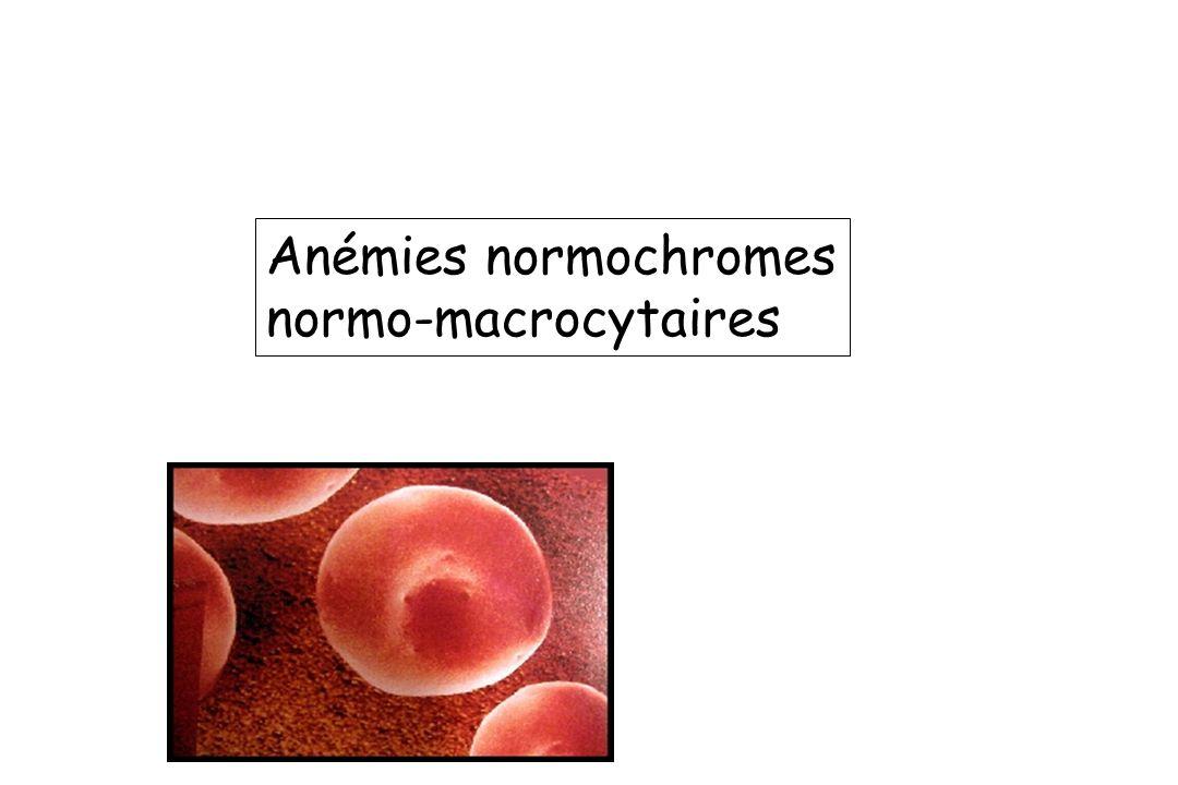 Anémies normochromes normo-macrocytaires