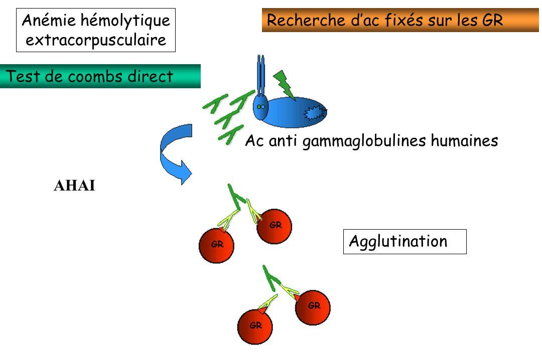 Agglutination Ac anti gammaglobulines humaines Test de coombs direct Recherche dac fixés sur les GR AHAI Anémie hémolytique extracorpusculaire