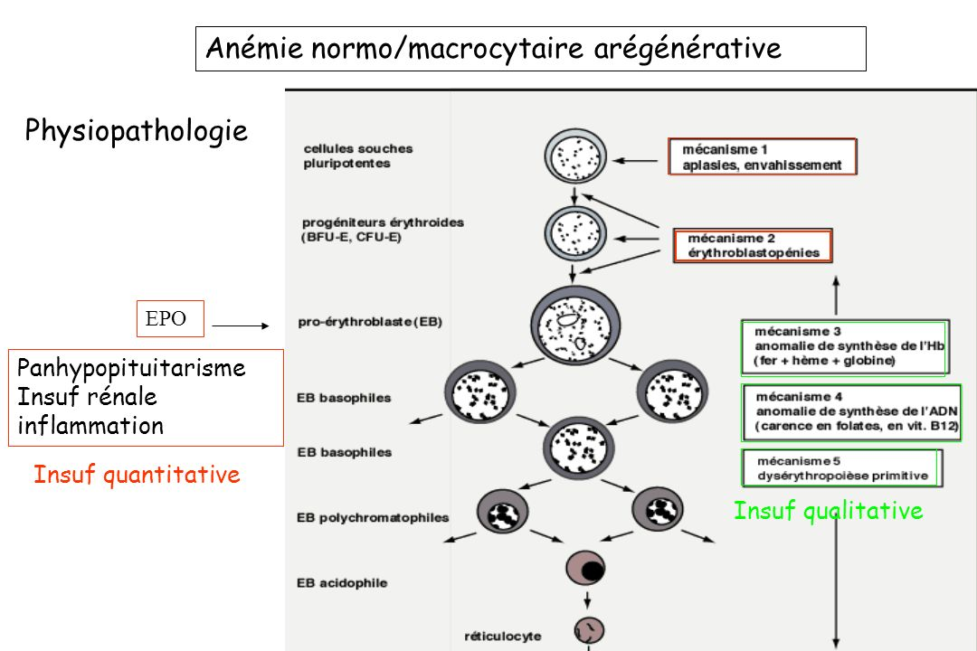 Physiopathologie Anémie normo/macrocytaire arégénérative EPO Panhypopituitarisme Insuf rénale inflammation Insuf quantitative Insuf qualitative