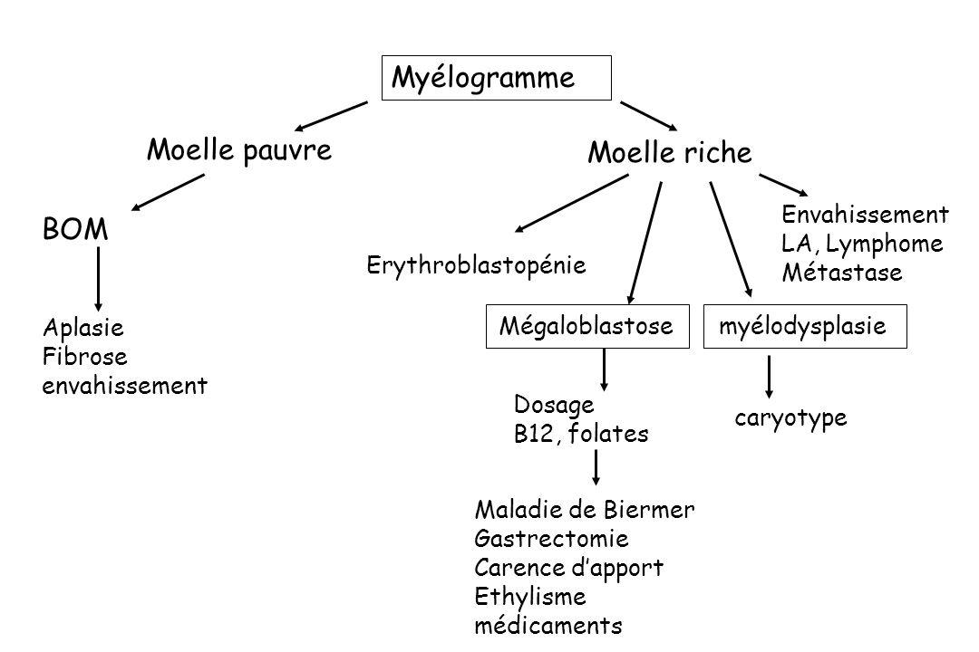 Myélogramme Moelle pauvre Moelle riche BOM Aplasie Fibrose envahissement Envahissement LA, Lymphome Métastase Mégaloblastose Erythroblastopénie myélod