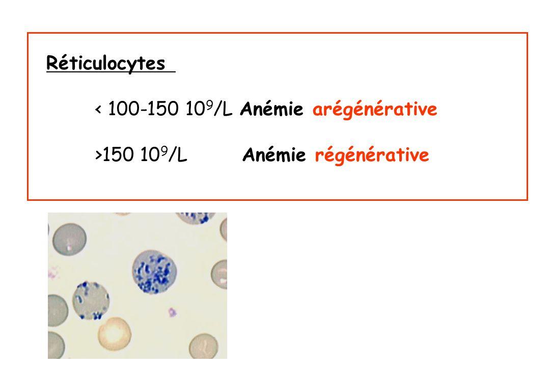 Réticulocytes < 100-150 10 9 /L Anémie arégénérative >150 10 9 /L Anémie régénérative