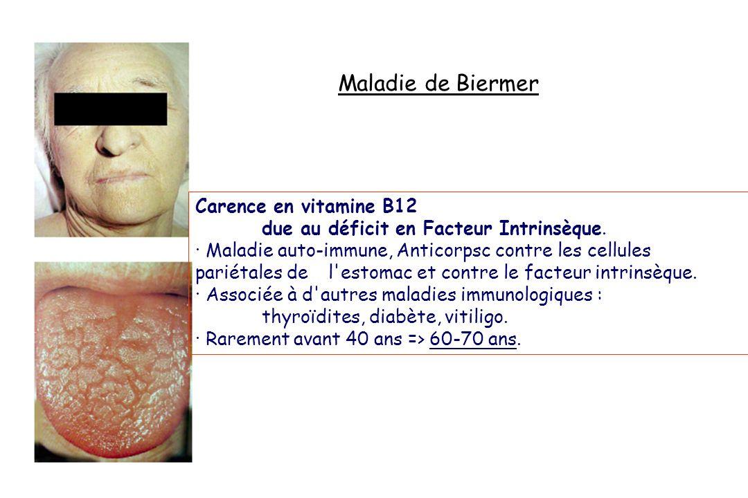 Maladie de Biermer Carence en vitamine B12 due au déficit en Facteur Intrinsèque. · Maladie auto-immune, Anticorpsc contre les cellules pariétales de