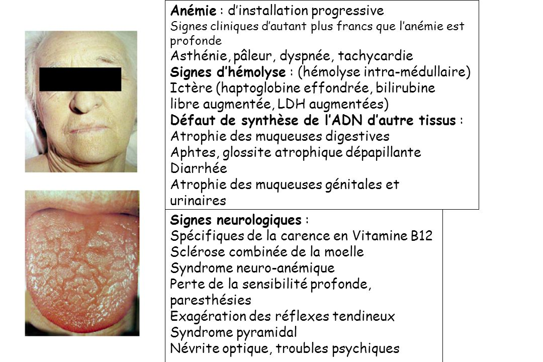 Signes neurologiques : Spécifiques de la carence en Vitamine B12 Sclérose combinée de la moelle Syndrome neuro-anémique Perte de la sensibilité profon