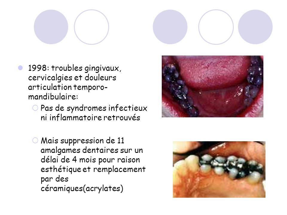 1998: troubles gingivaux, cervicalgies et douleurs articulation temporo- mandibulaire: Pas de syndromes infectieux ni inflammatoire retrouvés Mais sup