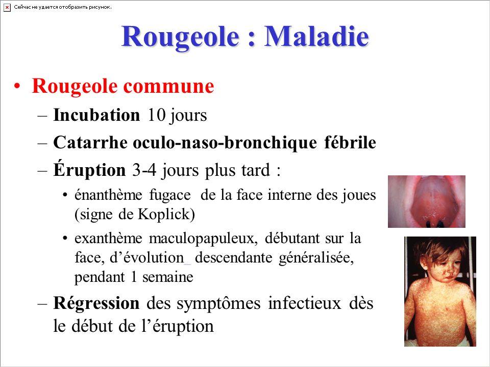 Rougeole : Maladie Rougeole commune –Incubation 10 jours –Catarrhe oculo-naso-bronchique fébrile –Éruption 3-4 jours plus tard : énanthème fugace de l