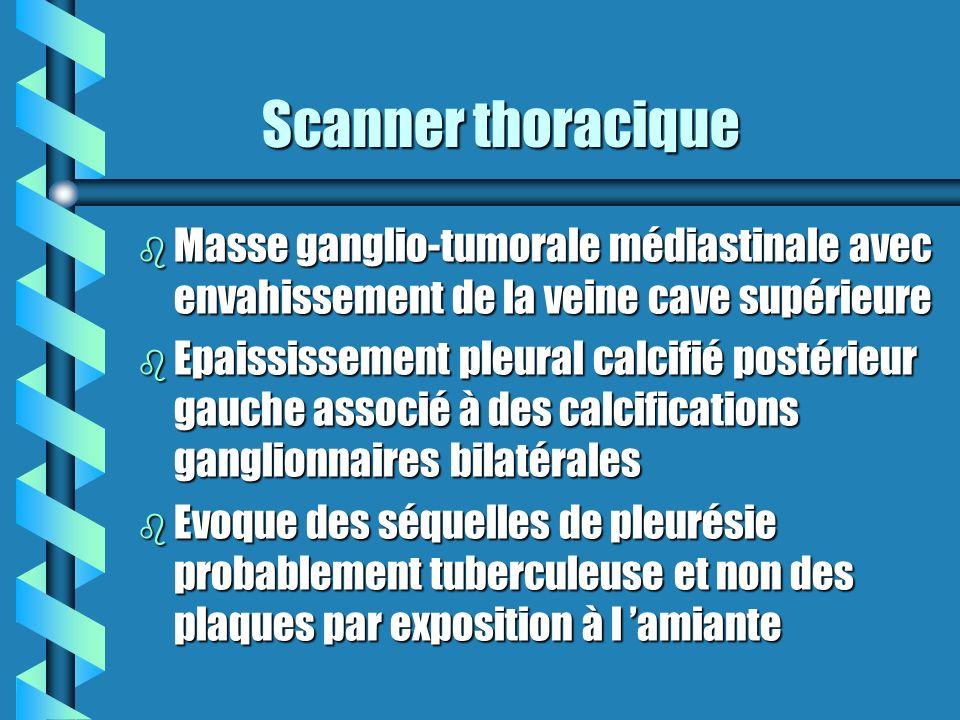 Scanner thoracique Scanner thoracique b Masse ganglio-tumorale médiastinale avec envahissement de la veine cave supérieure b Epaississement pleural ca