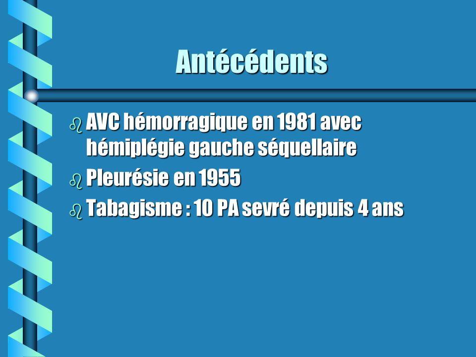 Antécédents Antécédents b AVC hémorragique en 1981 avec hémiplégie gauche séquellaire b Pleurésie en 1955 b Tabagisme : 10 PA sevré depuis 4 ans