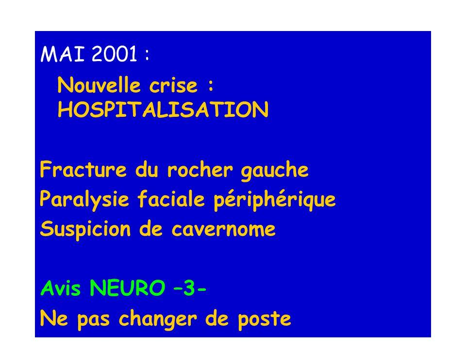 MAI 2001 : Nouvelle crise : HOSPITALISATION Fracture du rocher gauche Paralysie faciale périphérique Suspicion de cavernome Avis NEURO –3- Ne pas chan