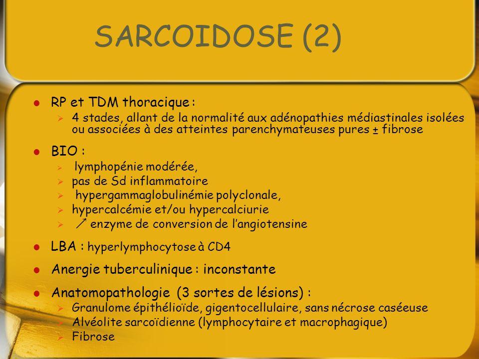 SARCOIDOSE (2) RP et TDM thoracique : 4 stades, allant de la normalité aux adénopathies médiastinales isolées ou associées à des atteintes parenchymat