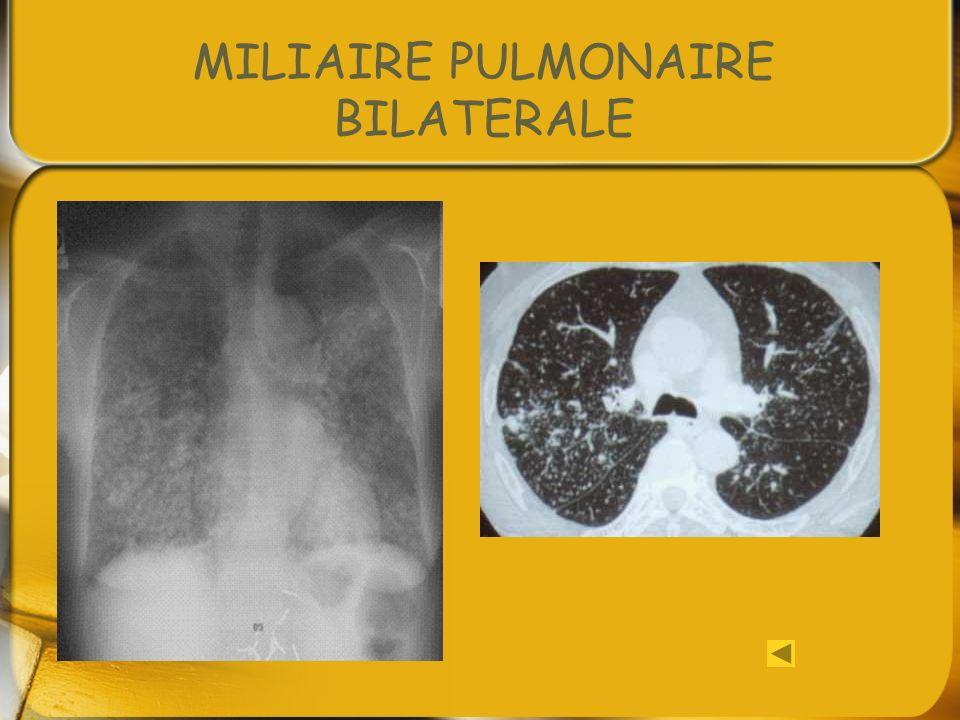 MILIAIRE PULMONAIRE BILATERALE