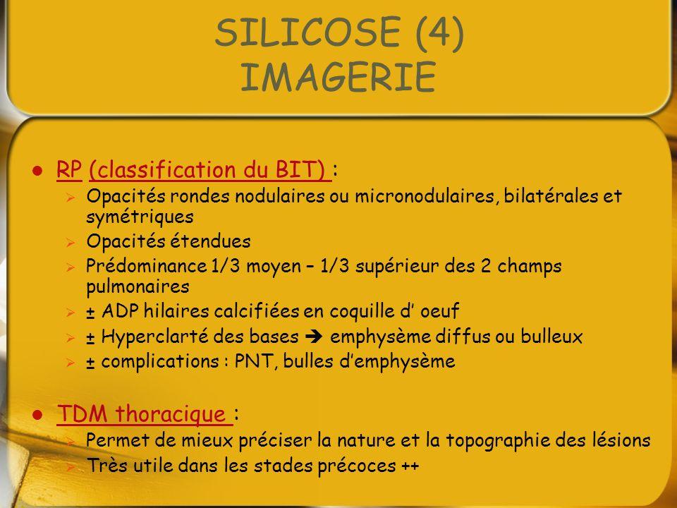 SILICOSE (4) IMAGERIE RP (classification du BIT) : RP(classification du BIT) Opacités rondes nodulaires ou micronodulaires, bilatérales et symétriques