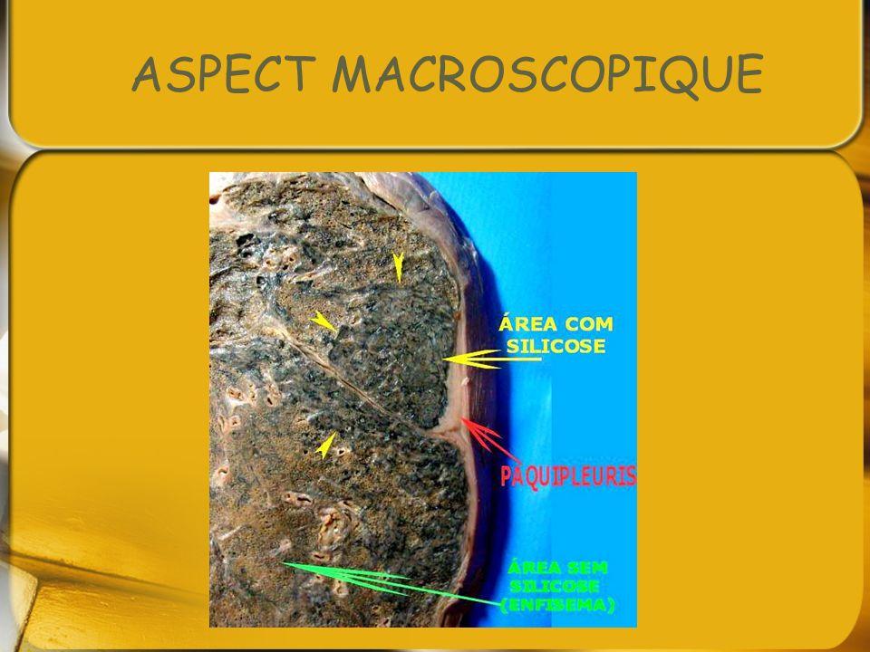 ASPECT MACROSCOPIQUE
