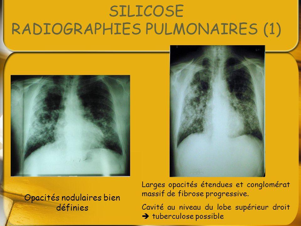 SILICOSE RADIOGRAPHIES PULMONAIRES (1) Opacités nodulaires bien définies Larges opacités étendues et conglomérat massif de fibrose progressive. Cavité