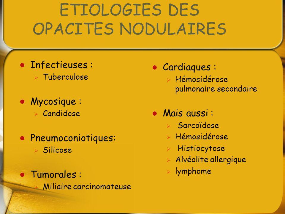 ETIOLOGIES DES OPACITES NODULAIRES Infectieuses : Tuberculose Mycosique : Candidose Pneumoconiotiques: Silicose Tumorales : Miliaire carcinomateuse Ca