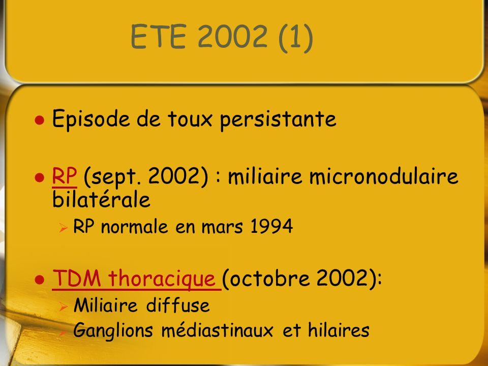 ETE 2002 (2) Examens complémentaires : Biologie : normale EFR : normal LBA : hyperlymphocytose à lymphocytes CD4 (rapport CD4/CD8 élevé) 44 % Biopsie pulmonaire chirurgicale : Nombreux granulomes épithélioïdes, gigantocellulaires Rares corps étrangers bifringents Diagnostic de sarcoïdose posésarcoïdose