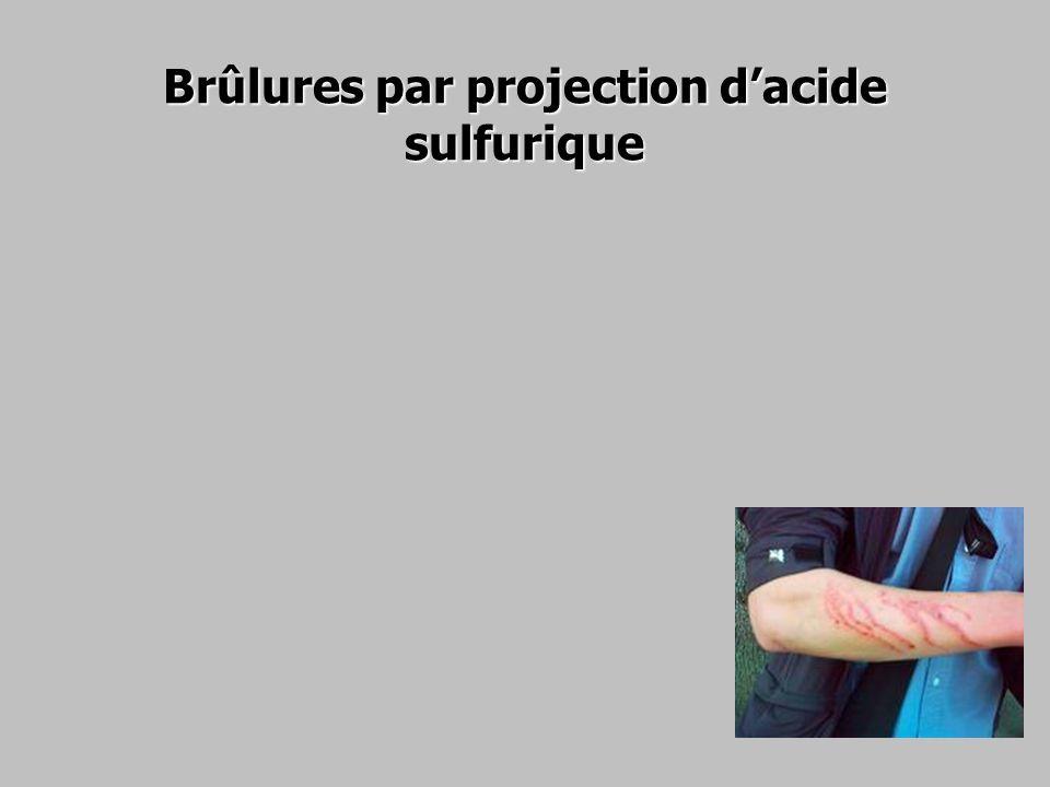 Brûlures par projection dacide sulfurique