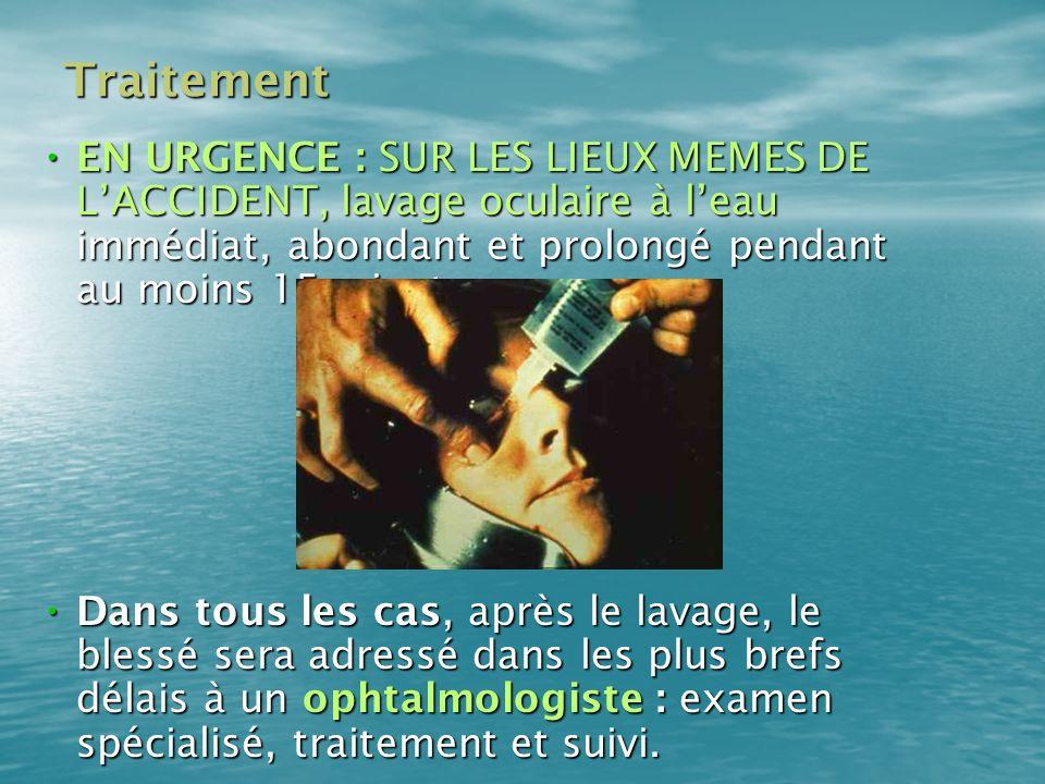 Traitement EN URGENCE : SUR LES LIEUX MEMES DE LACCIDENT, lavage oculaire à leau immédiat, abondant et prolongé pendant au moins 15 minutes. EN URGENC