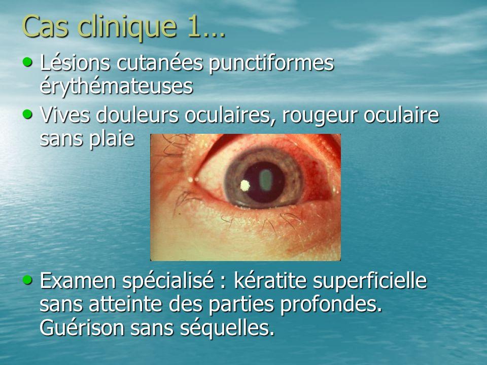 Cas clinique 1… Lésions cutanées punctiformes érythémateuses Lésions cutanées punctiformes érythémateuses Vives douleurs oculaires, rougeur oculaire s