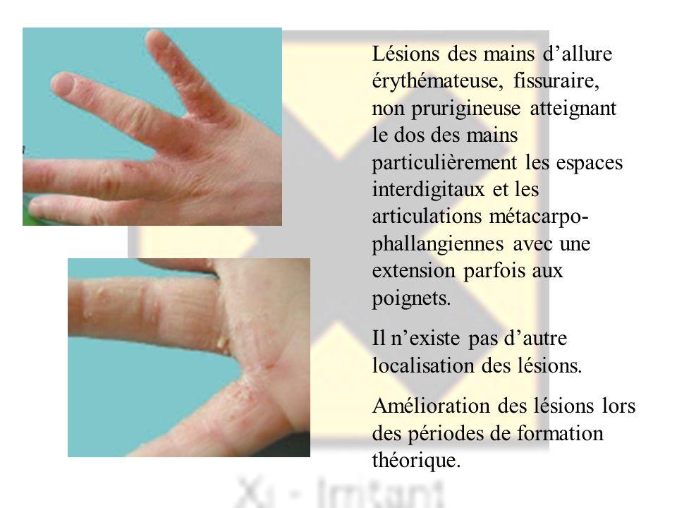 Lésions des mains dallure érythémateuse, fissuraire, non prurigineuse atteignant le dos des mains particulièrement les espaces interdigitaux et les ar