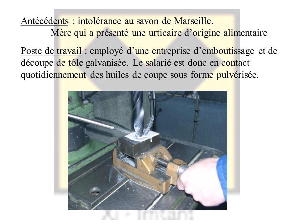 Antécédents : intolérance au savon de Marseille. Mère qui a présenté une urticaire dorigine alimentaire Poste de travail : employé dune entreprise dem