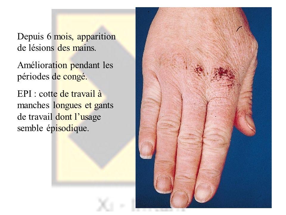 Depuis 6 mois, apparition de lésions des mains. Amélioration pendant les périodes de congé. EPI : cotte de travail à manches longues et gants de trava