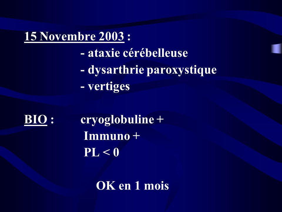 15 Novembre 2003 : - ataxie cérébelleuse - dysarthrie paroxystique - vertiges BIO : cryoglobuline + Immuno + PL < 0 OK en 1 mois