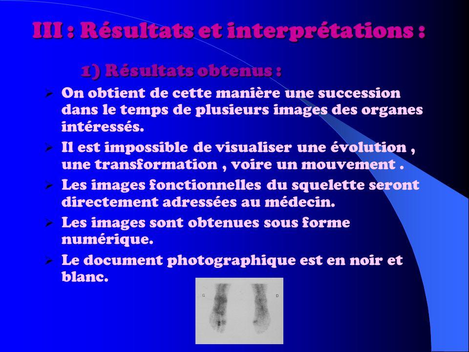 III : Résultats et interprétations : 1) Résultats obtenus : 1) Résultats obtenus : On obtient de cette manière une succession dans le temps de plusieurs images des organes intéressés.