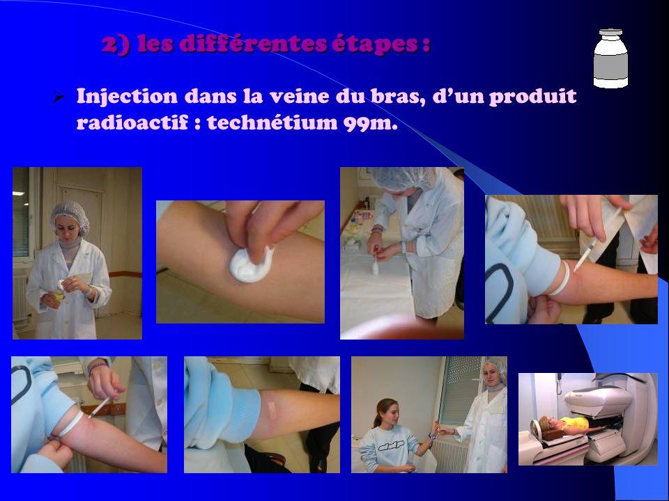 2) les différentes étapes : 2) les différentes étapes : Injection dans la veine du bras, dun produit radioactif : technétium 99m.