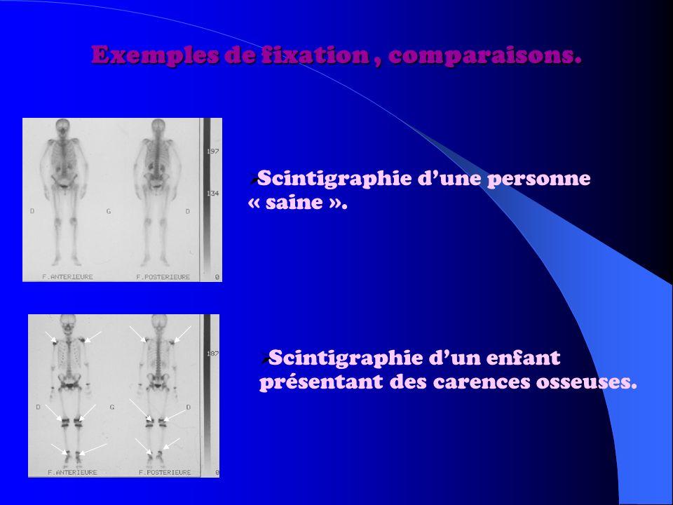 Exemples de fixation, comparaisons.Scintigraphie dune personne « saine ».
