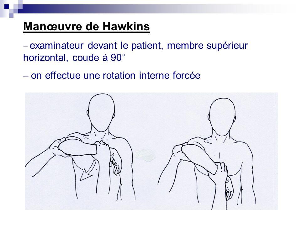 Manœuvre de Neer : élévation dans le plan de lomoplate (en rotation interne) lexaminateur est placé derrière le patient, élève le bras