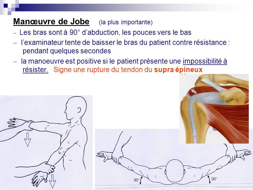 6. « testing » des tendons de la coiffe Objectifs : préciser la topographie de la lésion tendineuse voire la gravité. Ne teste pas la douleur mais la