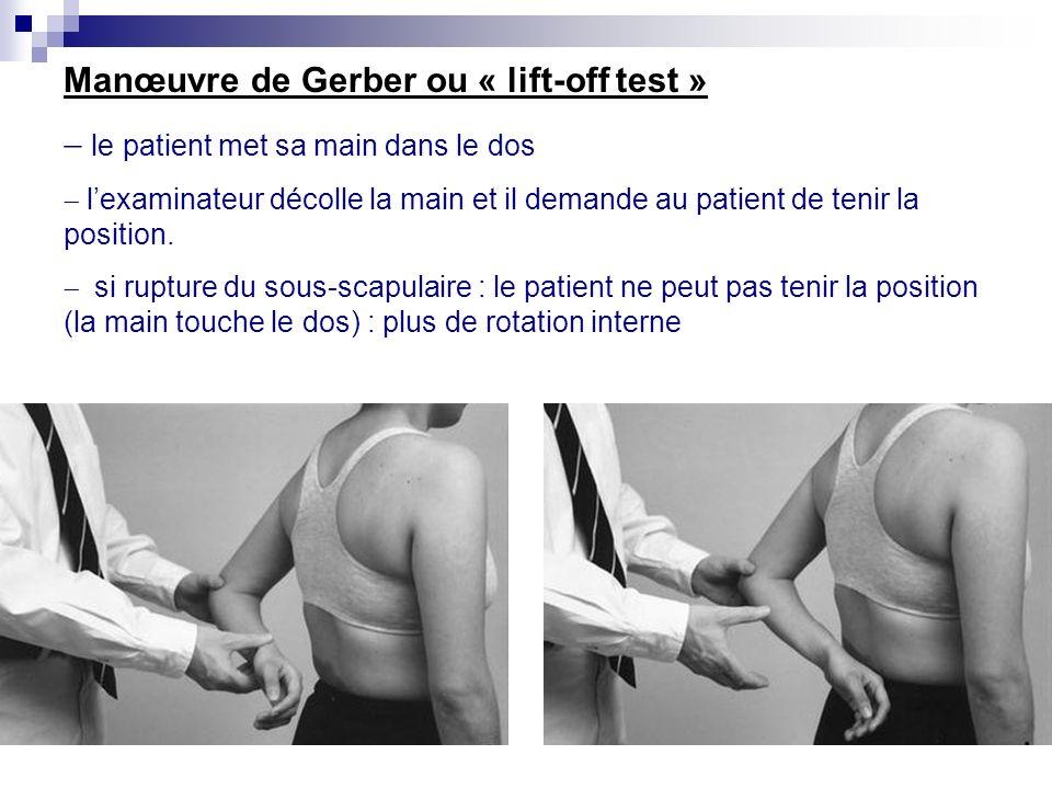 « Palm-up test » teste la longue portion du biceps. le patient a le membre supérieur en élévation antérieure de 90°